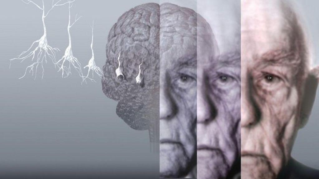 Японские ученые научились диагностировать болезнь Альцгеймера по одной капле крови